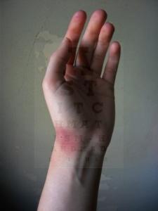 ikea bruise